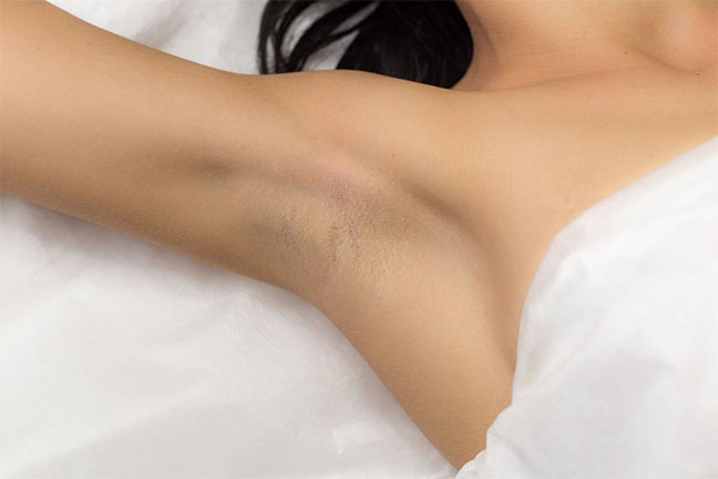 Hair Removal Laser To reveal a glowing and smooth skin as you wish