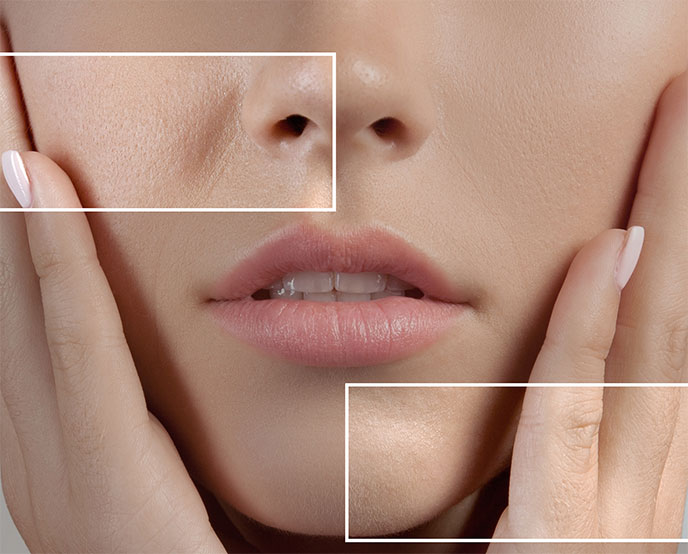 Minimize Large Pores With Pore Refining Laser