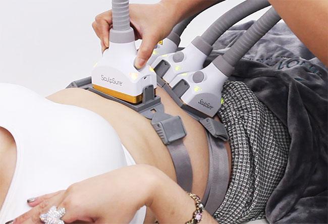 SculpSure แก้ปัญหาไขมันส่วนเกินสะสมบริเวณพุง