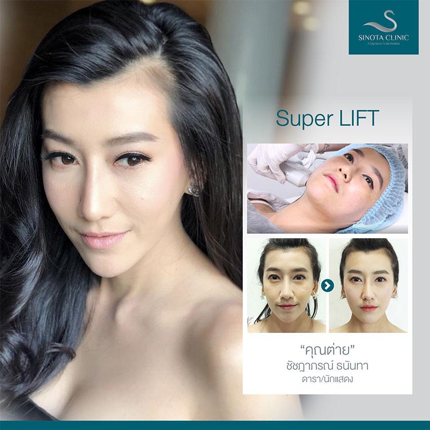 Super Lift