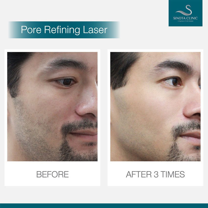 Pore Refining Laser